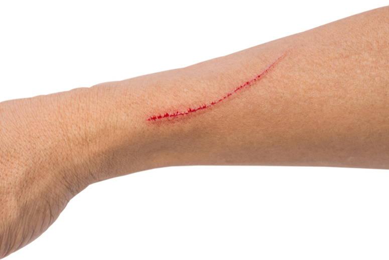 Global Cicatrizaci n de la herida Market