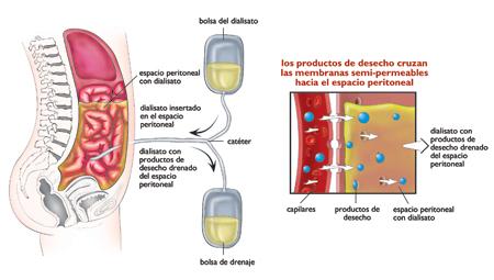 Global Di lisis peritoneal Market