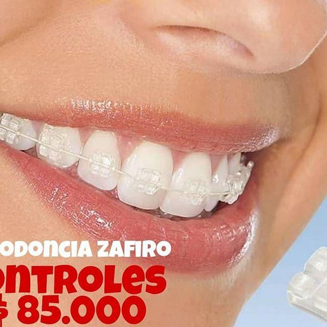 Global Ortodoncia Market